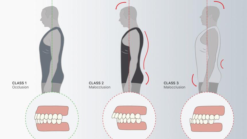 Denti e postura, il legame è stretto